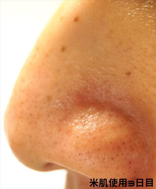米肌使用3日目 右小鼻