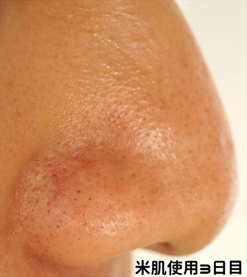 米肌使用3日目 左小鼻