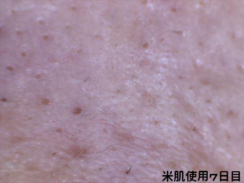 米肌使用7日目 左小鼻 マイクロスコープ画像