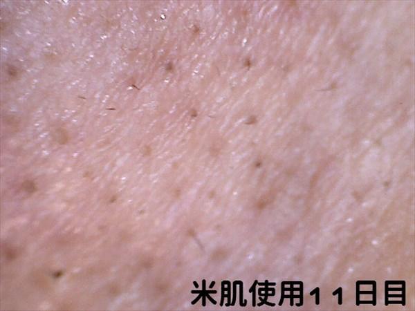 米肌使用11日目マイクロスコープ右小鼻