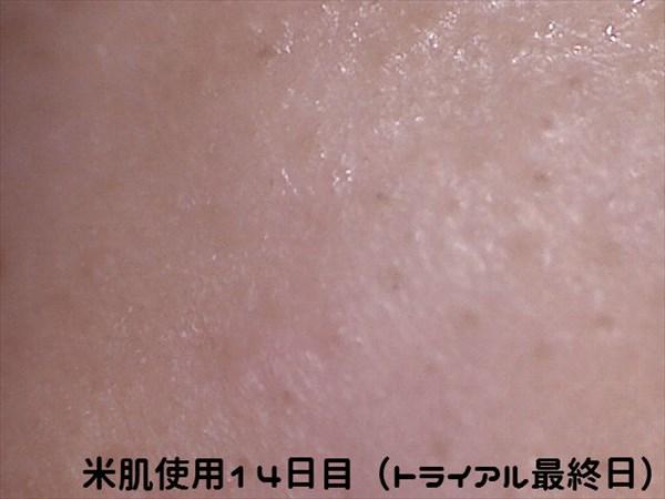 米肌使用14日目マイクロスコープ