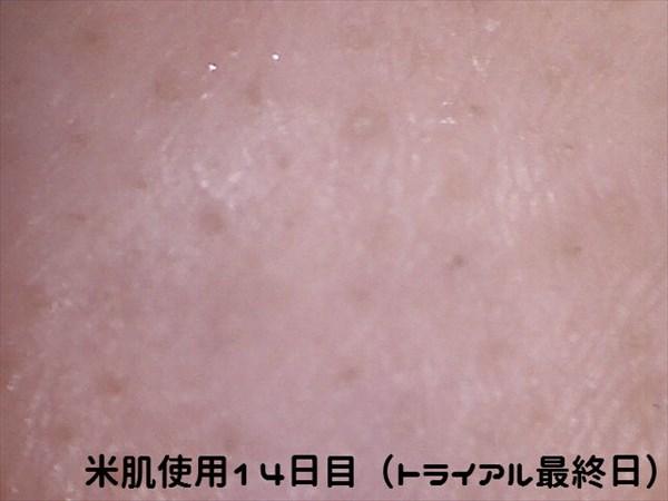 米肌使用14日目マイクロスコープ右小鼻