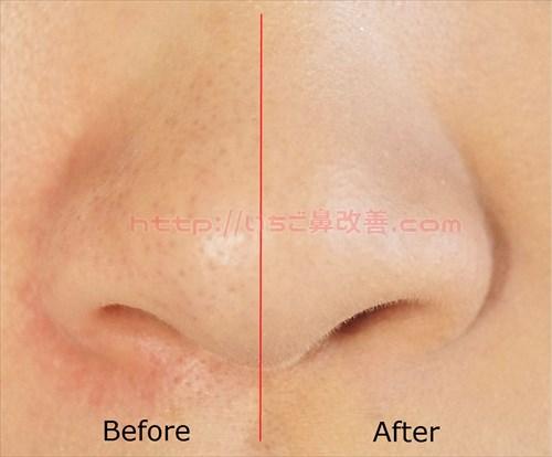 小鼻隠し前後の比較画像