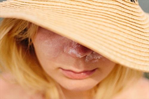 メラニン蓄積型のいちご鼻にピーリングは効果薄