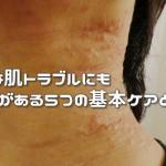 どんな肌トラブルにも効果がある5つの基本ケアとは?