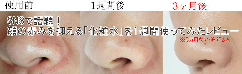 顔の赤みを改善するための方法のまとめ