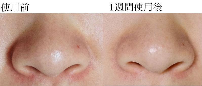 正面鼻の比較写真