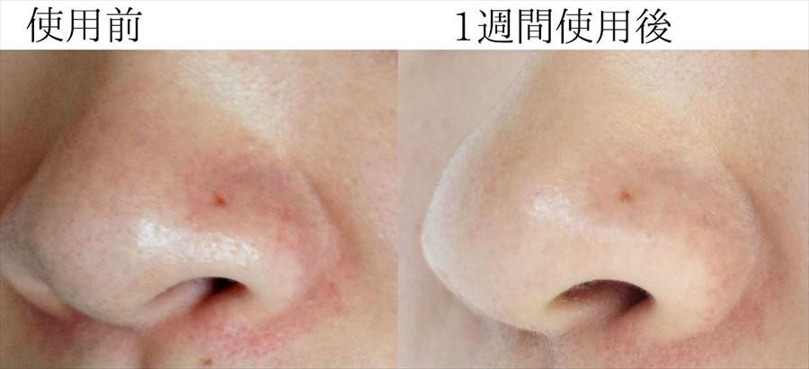 小鼻の比較写真