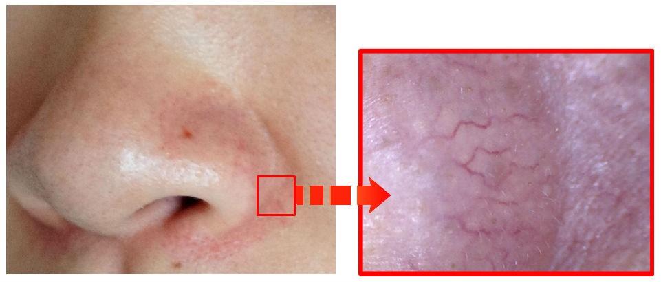 小鼻をマイクロスコープで拡大