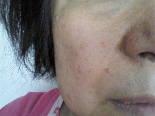 一般的な50歳代の肌