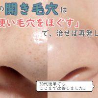 開き毛穴タイプのいちご鼻の改善方法