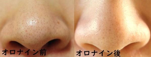 オロナインパック前と後の鼻