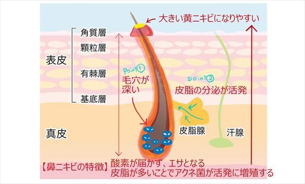 鼻の毛穴の特徴