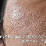 【頬の毛穴】極小黒ポツは開き毛穴のサイン!簡単ケアで-5歳肌へ!