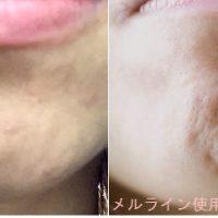 顎ニキビの原因と治し方