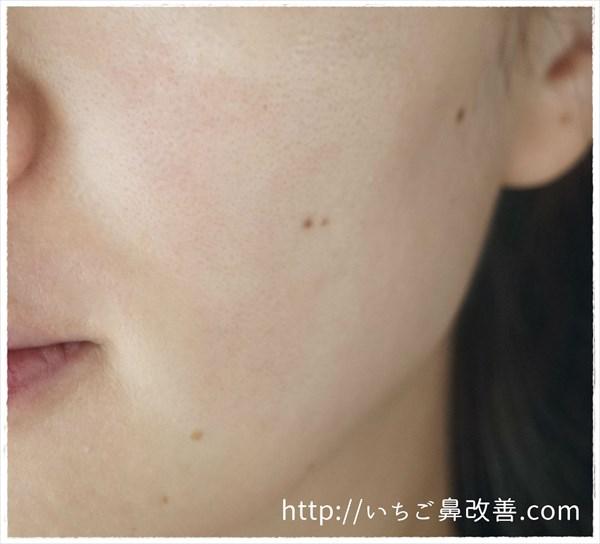 拭き取り後の肌の状態