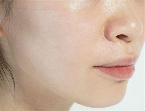 アクポレス使用10日目の肌